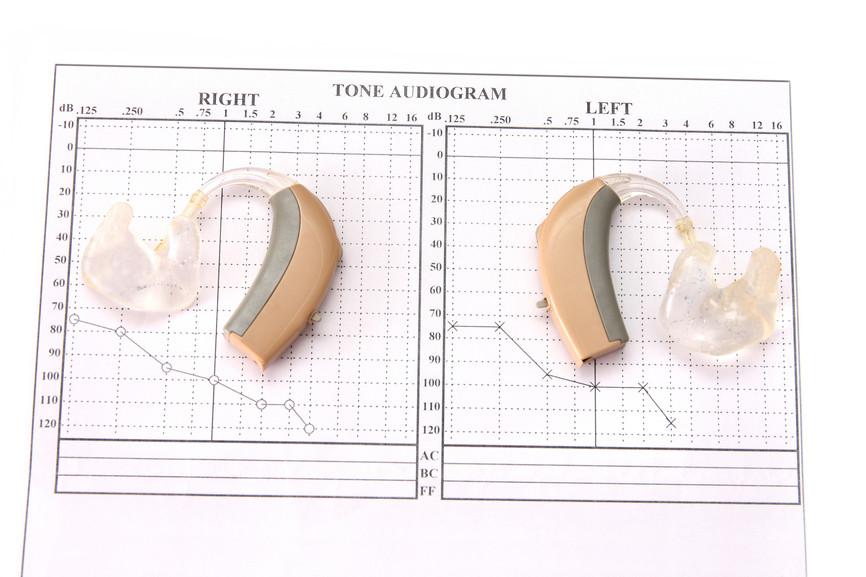 מכון בדיקת שמיעה – שלבים בבחירת מכשיר שמיעה